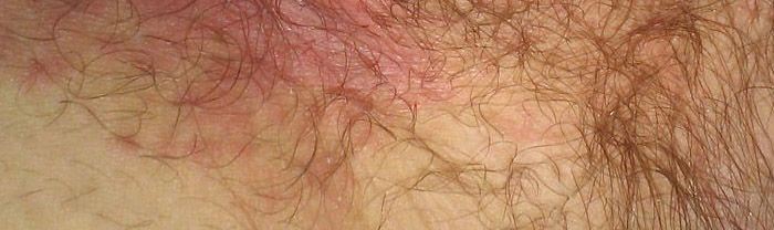 crotch rot aka jock itch