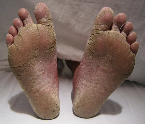 disgusting photo of athlete's foot